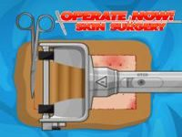 Игра Операция: пересадка кожи